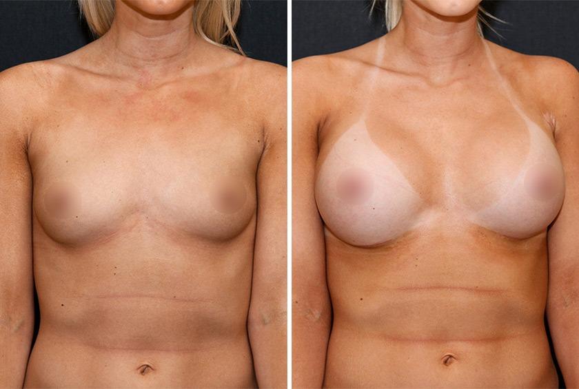 Увеличение груди высокими имплант