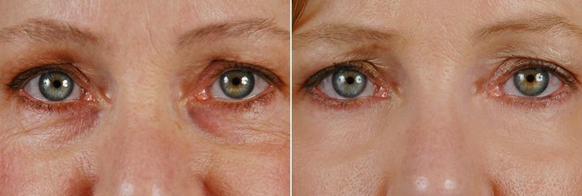 лазерное омоложение вокруг глаз