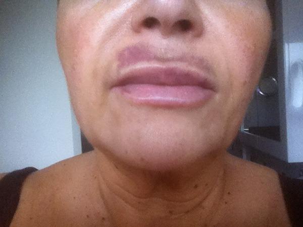Через день после увеличения губ