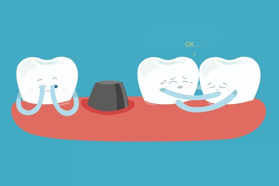 установка зубных имплантатов