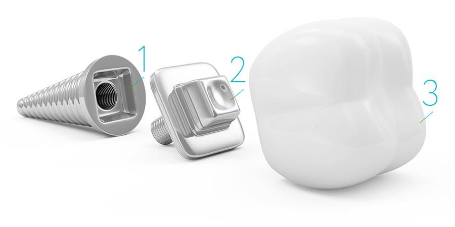 что такое зубные имплантаты