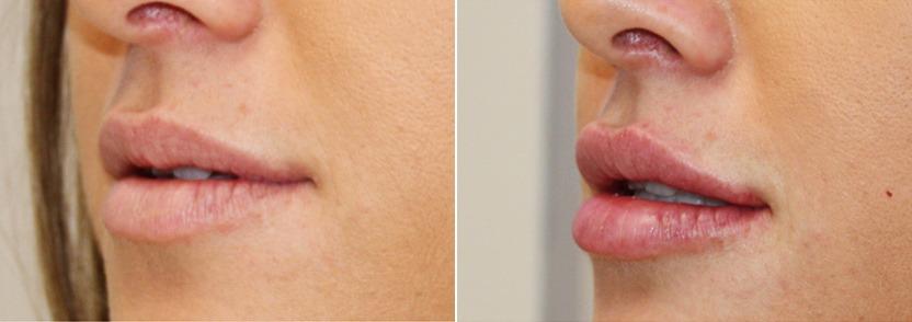 увеличение губ ювидермом