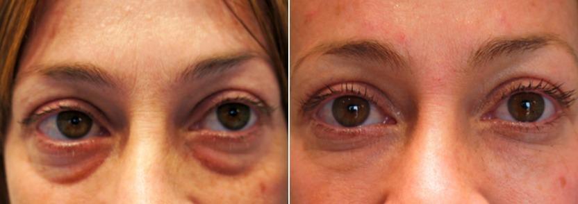 До и после трех процедур для области под глазами. Как это часто бывает со слёзными бороздами, врач доволен не на 100%, так как есть асимметрия. Тем не менее, пациентка в восторге и считает, что мешки под глазами на самом деле больше не проблема.