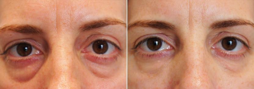 После двух процедур. Это был трудный случай. Косметолог волновался, что возможен легкий эффект Тиндаля после первых 2 процедур, но смотрите изображения ниже – после трех сессий результаты улучшились.