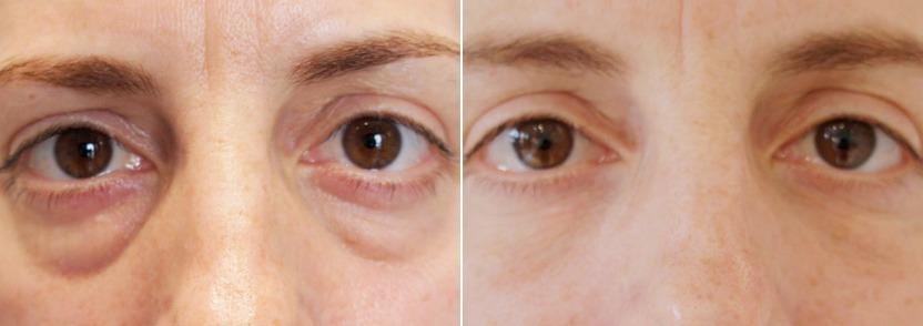 Это та же самая пациентка, что и выше. Тем не менее, фото «после» сделаны через 2 года и 4 месяца после фото «до» (первоначально были выполнены 3 процедуры по 1 мл. Рестилайна). Потрясающий результат!