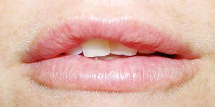 Пациентка с крупным отеком в губе через 12 месяцев после обработки филлером. Чтобы ее растворить, может потребоваться гиалаза.