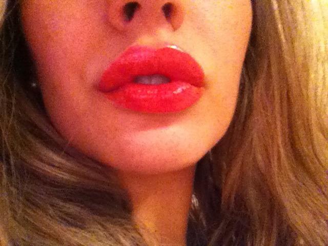 губы после увеличения juvederm