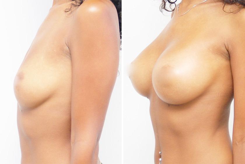 Могут ли груди третьего размера без силикона стоячими фото