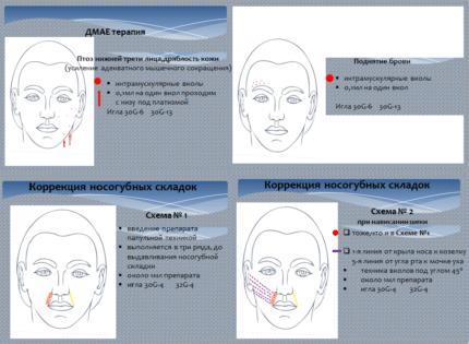 Схема введения инъекций