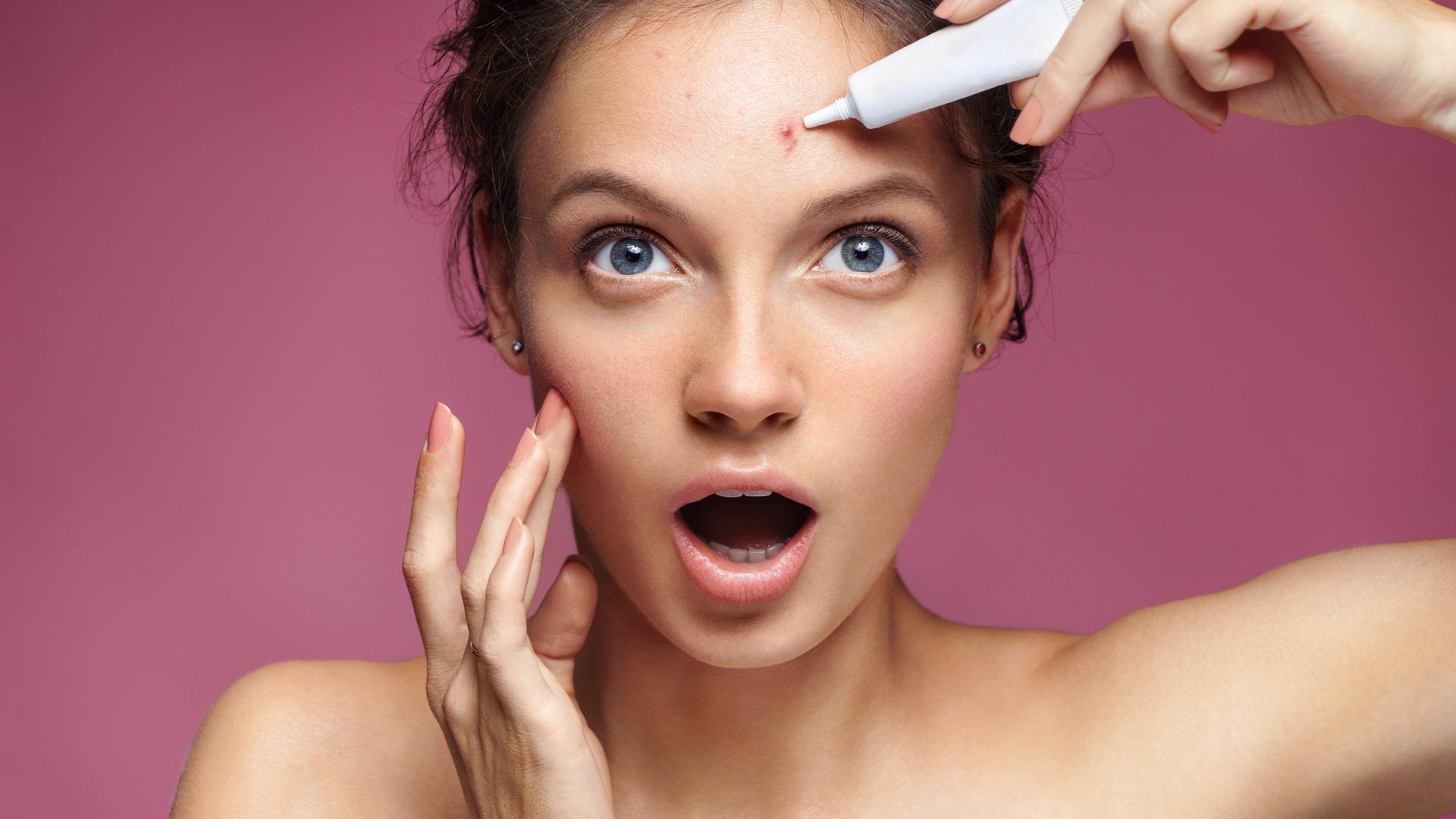 Средства для лечения прыщей на лице