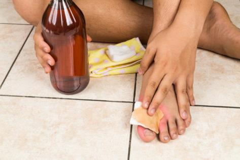 Удаление папиллом и бородавок яблочным уксусом в домашних условиях