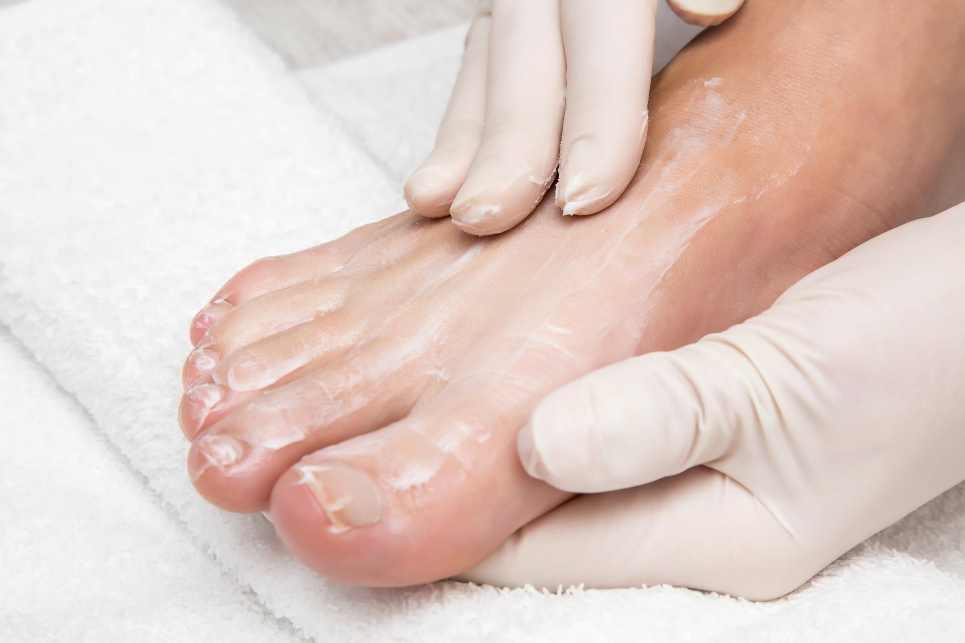 Рецепты пилинга ног в домашних условиях