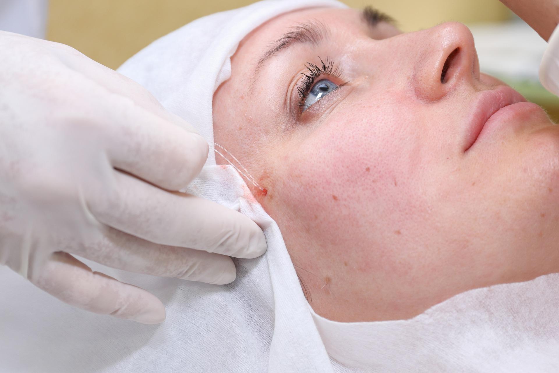Операция подтяжки лица мезонитями